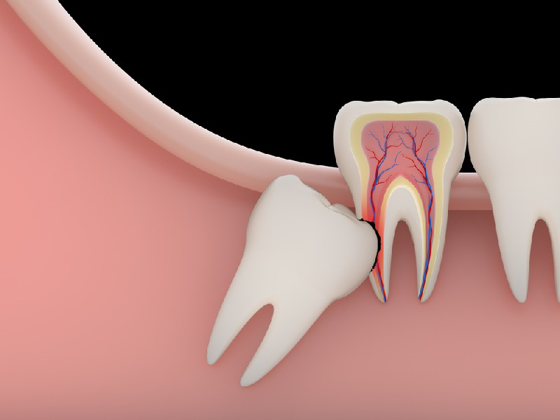 Tooth-Extraction-Mesa-AZ