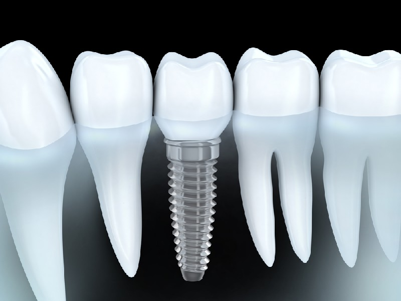 Tooth-Implant-Mesa-AZ